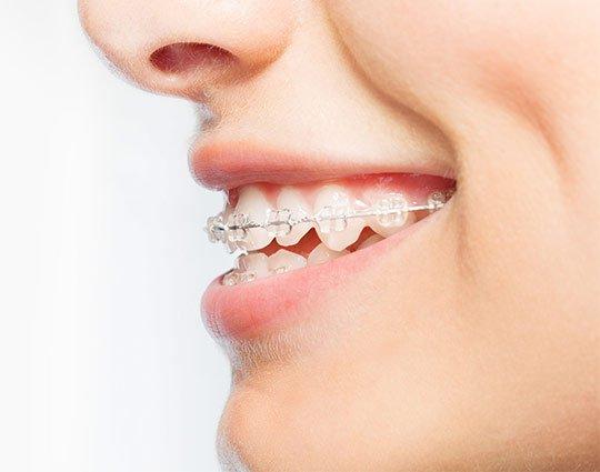 Adult braces Hertfordshire