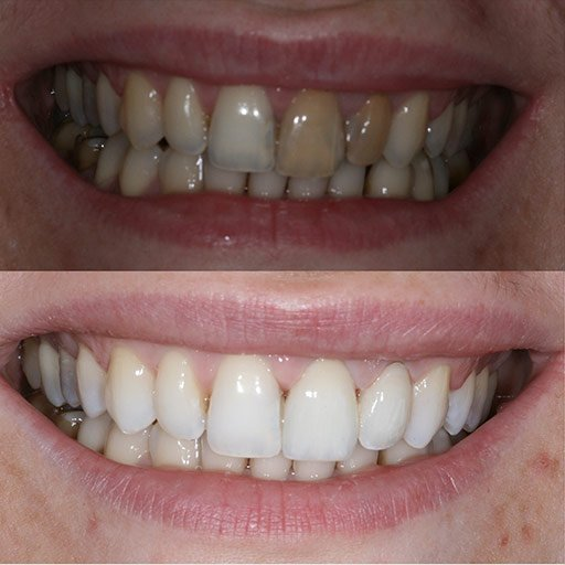 Invisalign Before After Photos